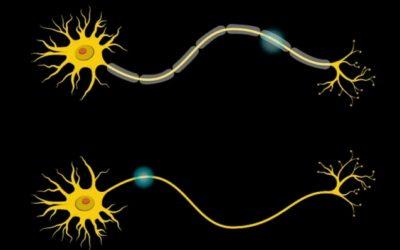 Sindrome di Williams e MIT – articolo in evidenza
